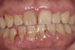 歯周病治療初日