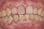 歯周病治療1週間後