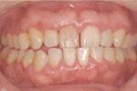 歯周病治療2週間後