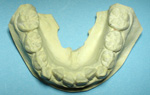 床矯正歯型